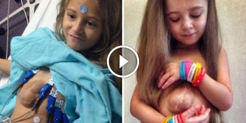Cette petite fille vit avec le coeur hors de sa poitrine depuis sa naissance