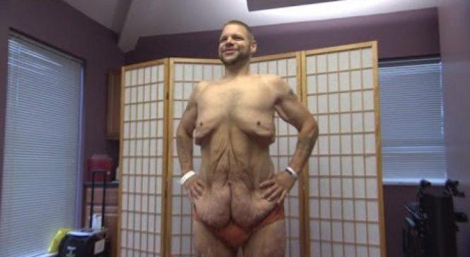 Regardez bien comment il a perdu 191 kilos en 3 ans. Le résultat sans l'excès de peau est stupéfiant !
