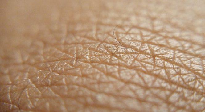 Pourquoi j'ai des tâches blanches sur la peau ? – La réponse
